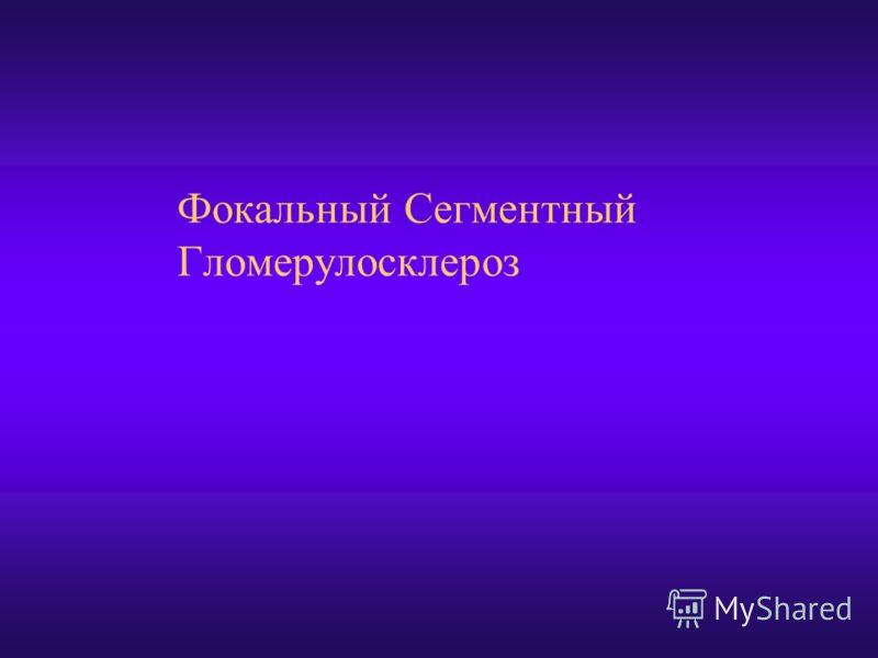 Фокальный Сегментный Гломерулосклероз