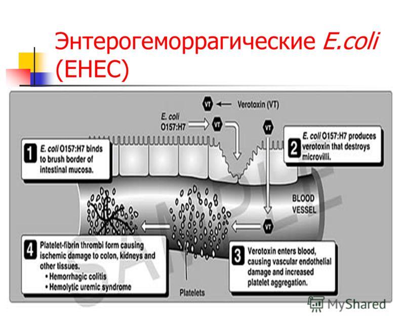 Энтерогеморрагические E.coli (EHEC)