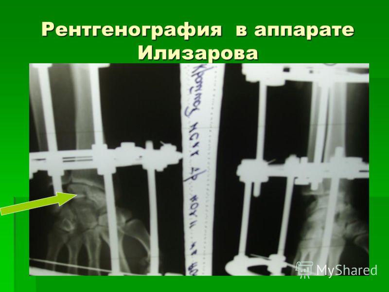 Рентгенография в аппарате Илизарова
