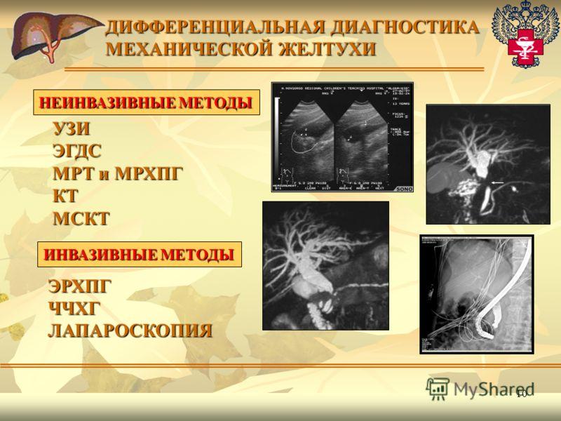 10 ЭРХПГЧЧХГЛАПАРОСКОПИЯ ДИФФЕРЕНЦИАЛЬНАЯ ДИАГНОСТИКА МЕХАНИЧЕСКОЙ ЖЕЛТУХИ НЕИНВАЗИВНЫЕ МЕТОДЫ УЗИЭГДС МРТ и МРХПГ КТМСКТ ИНВАЗИВНЫЕ МЕТОДЫ