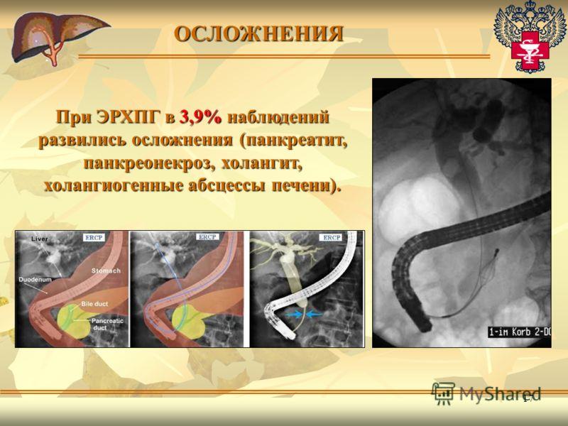 17 ОСЛОЖНЕНИЯ При ЭРХПГ в 3,9% наблюдений развились осложнения (панкреатит, панкреонекроз, холангит, холангиогенные абсцессы печени).