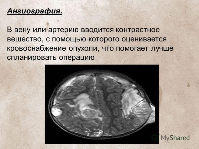 Ангиография. В вену или артерию вводится контрастное вещество, с помощью которого оценивается кровоснабжение опухоли, что помогает лучше спланировать операцию