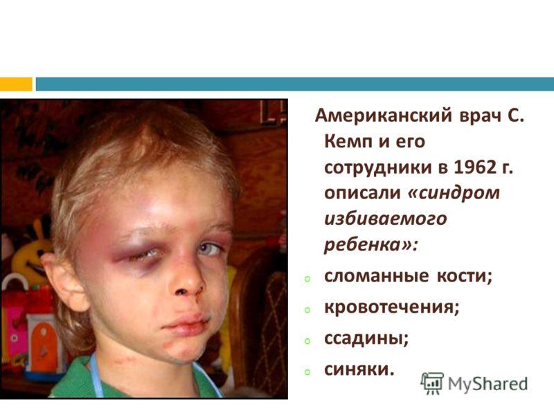 Американский врач С. Кемп и его сотрудники в 1962 г. описали « синдром избиваемого ребенка »: o сломанные кости ; o кровотечения ; o ссадины ; o синяки.