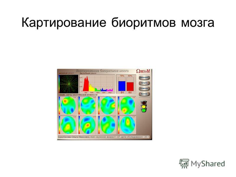 Картирование биоритмов мозга