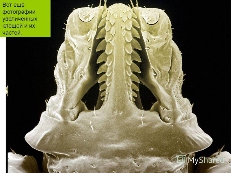 Вот ещё фотографии увеличенных клещей и их частей.