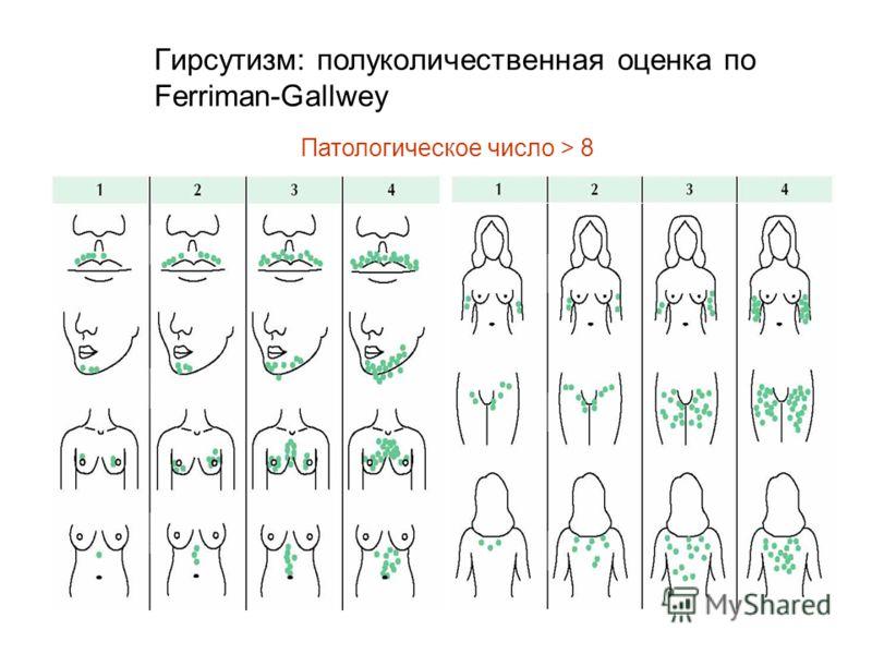 Гирсутизм: полуколичественная оценка по Ferriman-Gallwey Патологическое число > 8