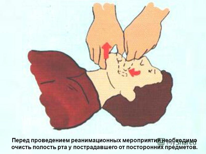 Перед проведением реанимационных мероприятий необходимо очисть полость рта у пострадавшего от посторонних предметов.
