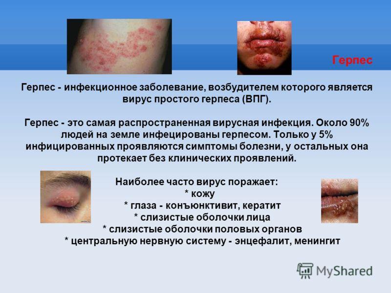 Герпес Герпес - инфекционное заболевание, возбудителем которого является вирус простого герпеса (ВПГ). Герпес - это самая распространенная вирусная инфекция. Около 90% людей на земле инфецированы герпесом. Только у 5% инфицированных проявляются симпт