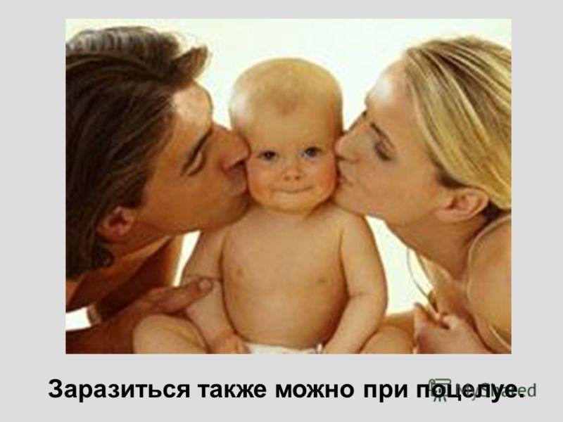 Заразиться также можно при поцелуе.