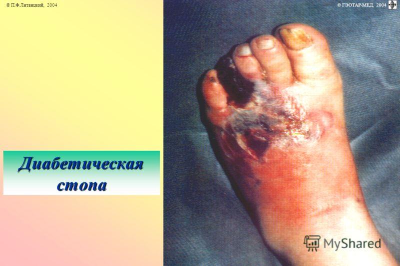 Диабетическая стопа © П.Ф.Литвицкий, 2004 © ГЭОТАР-МЕД, 2004