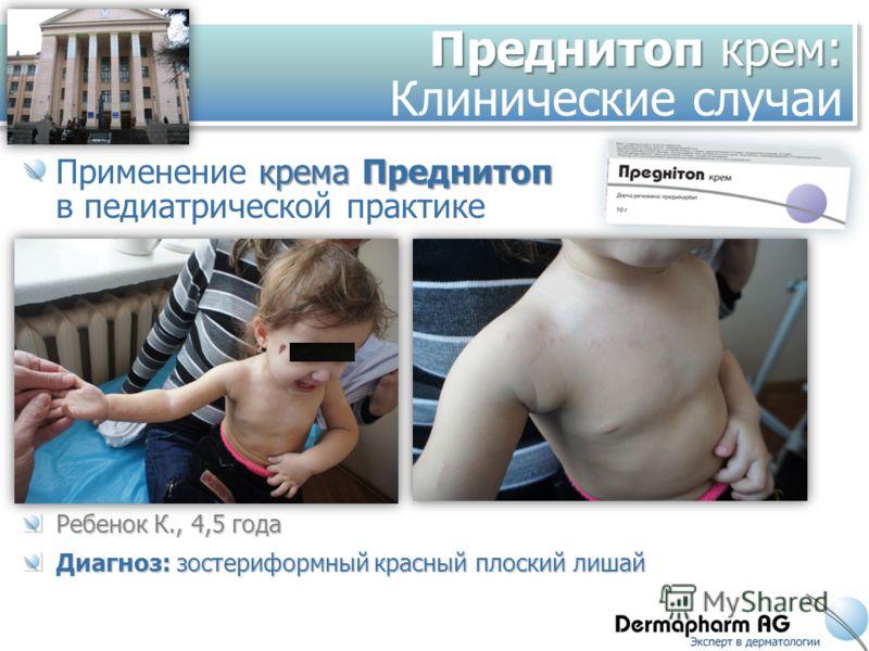 Преднитоп крем: Преднитоп крем: Клинические случаи кремаПреднитоп Применение крема Преднитоп в педиатрической практике Ребенок К., 4,5 года Диагноз: зостериформный красный плоский лишай