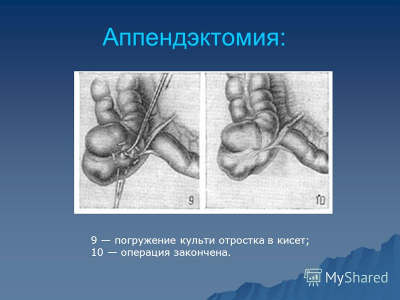 Аппендэктомия: 9 погружение культи отростка в кисет; 10 операция закончена.