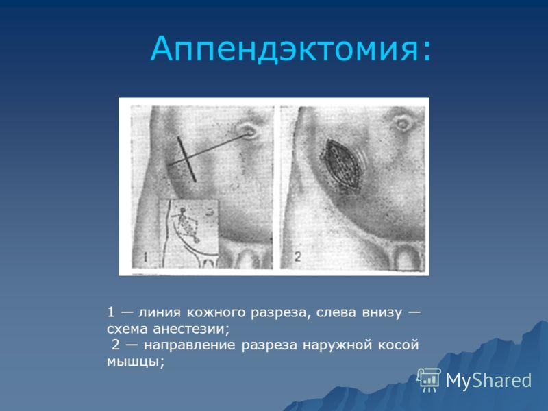 Аппендэктомия: 1 линия кожного разреза, слева внизу схема анестезии; 2 направление разреза наружной косой мышцы;