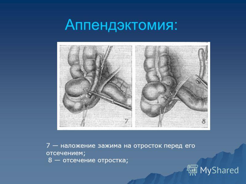 Аппендэктомия: 7 наложение зажима на отросток перед его отсечением; 8 отсечение отростка;