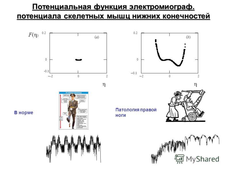 Потенциальная функция электромиограф. потенциала скелетных мышц нижних конечностей -202 0 0.2 - 0.1 F(η ) η (a)(a) η 202 0.1 0 0.2 (b)(b) В норме Патология правой ноги