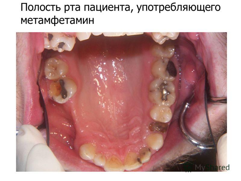 Полость рта пациента, употребляющего метамфетамин