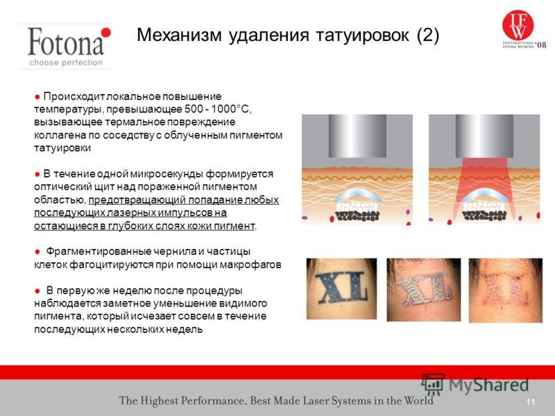 11 Механизм удаления татуировок (2) Происходит локальное повышение температуры, превышающее 500 - 1000°C, вызывающее термальное повреждение коллагена по соседству с облученным пигментом татуировки В течение одной микросекунды формируется оптический щ