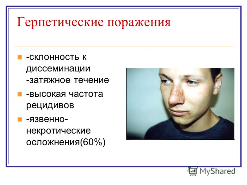 Герпетические поражения -склонность к диссеминации -затяжное течение -высокая частота рецидивов -язвенно- некротические осложнения(60%)