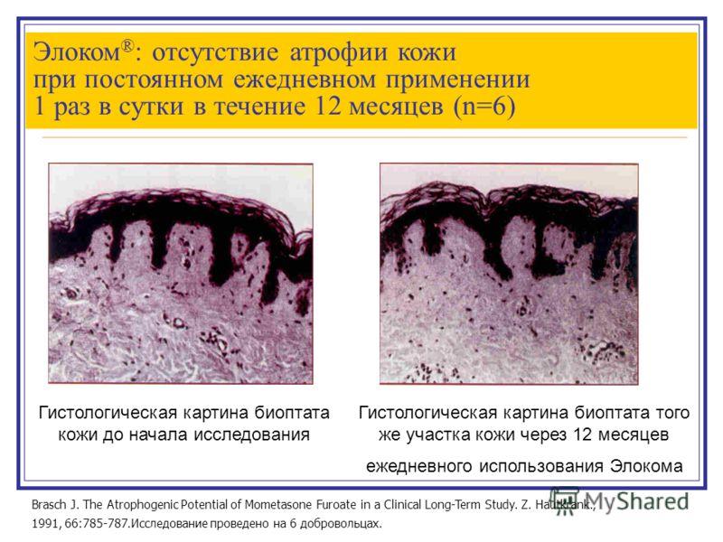 Элоком ® : отсутствие атрофии кожи при постоянном ежедневном применении 1 раз в сутки в течение 12 месяцев (n=6) Brasch J. The Atrophogenic Potential of Mometasone Furoate in a Clinical Long-Term Study. Z. Hautkrank., 1991, 66:785-787.Исследование пр