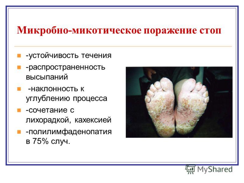 Микробно-микотическое поражение стоп -устойчивость течения -распространенность высыпаний -наклонность к углублению процесса -сочетание с лихорадкой, кахексией -полилимфаденопатия в 75% случ.