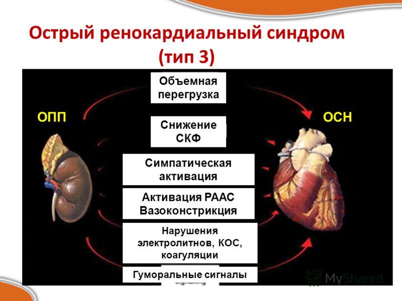 Острый ренокардиальный синдром (тип 3) ОППОСН Объемная перегрузка Снижение СКФ Симпатическая активация Активация РААС Вазоконстрикция Нарушения электролитнов, КОС, коагуляции Гуморальные сигналы