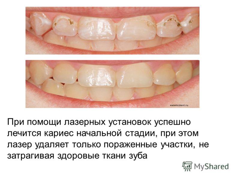 При помощи лазерных установок успешно лечится кариес начальной стадии, при этом лазер удаляет только пораженные участки, не затрагивая здоровые ткани зуба