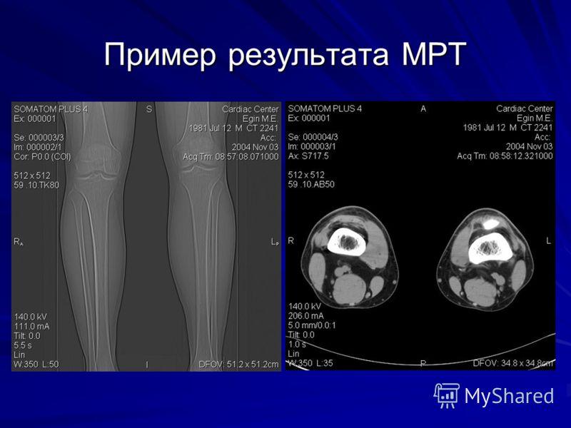 Пример результата МРТ