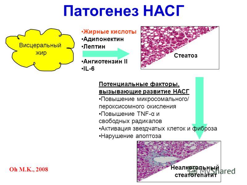 Жирные кислоты Адипонектин Лептин Ангиотензин II IL-6 Потенциальные факторы, вызывающие развитие НАСГ Повышение микросомального/ пероксисомного окисления Повышение TNF-α и свободных радикалов Активация звездчатых клеток и фиброза Нарушение апоптоза П