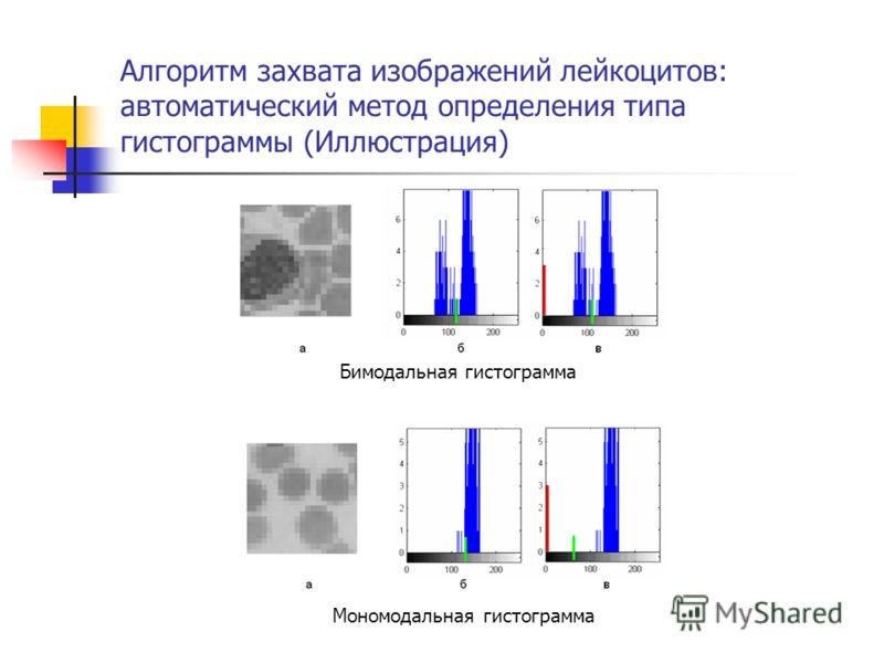 Алгоритм захвата изображений лейкоцитов: автоматический метод определения типа гистограммы (Иллюстрация) Бимодальная гистограмма Мономодальная гистограмма