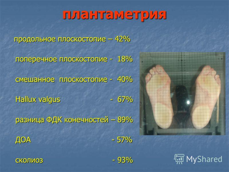 плантаметрия продольное плоскостопие – 42% продольное плоскостопие – 42% поперечное плоскостопие - 18% смешанное плоскостопие - 40% Hallux valgus - 67% разница ФДК конечностей – 89% ДОА - 57% сколиоз - 93%