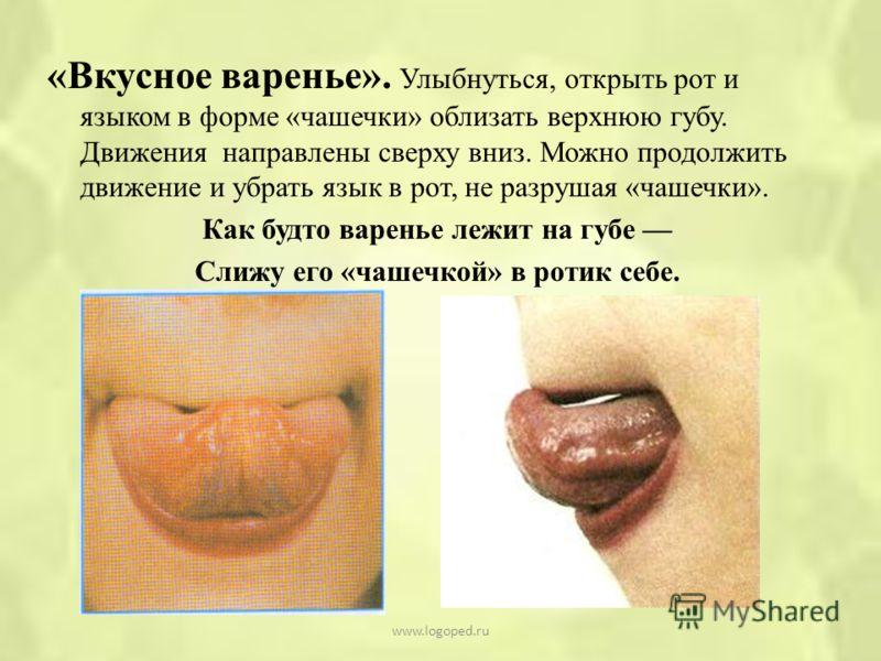 «Вкусное варенье». Улыбнуться, открыть рот и языком в форме «чашечки» облизать верхнюю губу. Движения направлены сверху вниз. Можно продолжить движение и убрать язык в рот, не разрушая «чашечки». Как будто варенье лежит на губе Слижу его «чашечкой» в