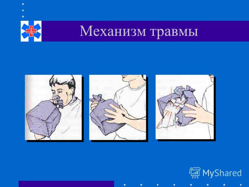 Механизм травмы