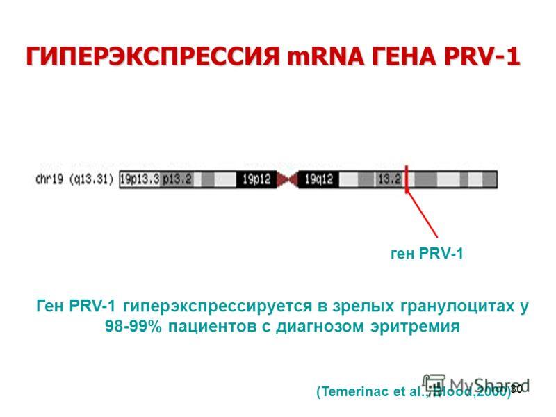 30 ген PRV-1 ГИПЕРЭКСПРЕССИЯ mRNA ГЕНА PRV-1 Ген PRV-1 гиперэкспрессируется в зрелых гранулоцитах у 98-99% пациентов с диагнозом эритремия (Temerinac et al., Blood,2000)