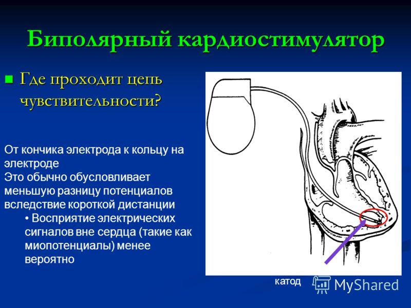 Биполярный кардиостимулятор Где проходит цепь чувствительности? Где проходит цепь чувствительности? Анод и катод От кончика электрода к кольцу на электроде Это обычно обусловливает меньшую разницу потенциалов вследствие короткой дистанции Восприятие