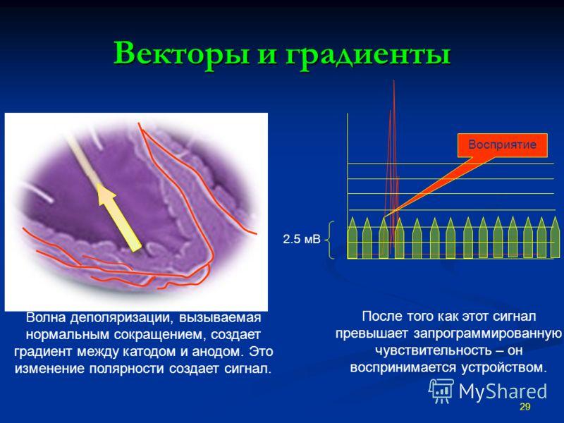 Векторы и градиенты 29 Восприятие Волна деполяризации, вызываемая нормальным сокращением, создает градиент между катодом и анодом. Это изменение полярности создает сигнал. После того как этот сигнал превышает запрограммированную чувствительность – он