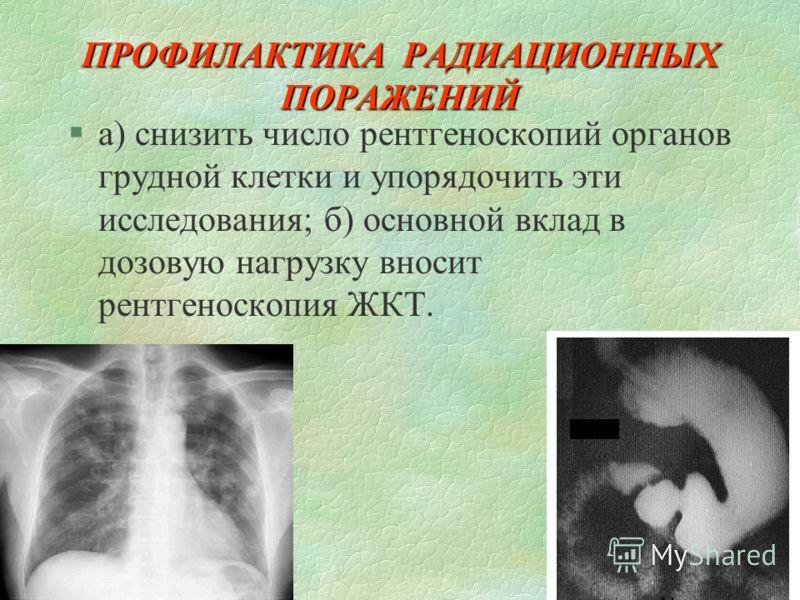 ПРОФИЛАКТИКА РАДИАЦИОННЫХ ПОРАЖЕНИЙ §а) снизить число рентгеноскопий органов грудной клетки и упорядочить эти исследования; б) основной вклад в дозовую нагрузку вносит рентгеноскопия ЖКТ.