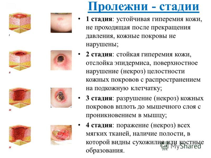 1 стадия: устойчивая гиперемия кожи, не проходящая после прекращения давления, кожные покровы не нарушены; 2 стадия: стойкая гиперемия кожи, отслойка эпидермиса, поверхностное нарушение (некроз) целостности кожных покровов с распространением на подко