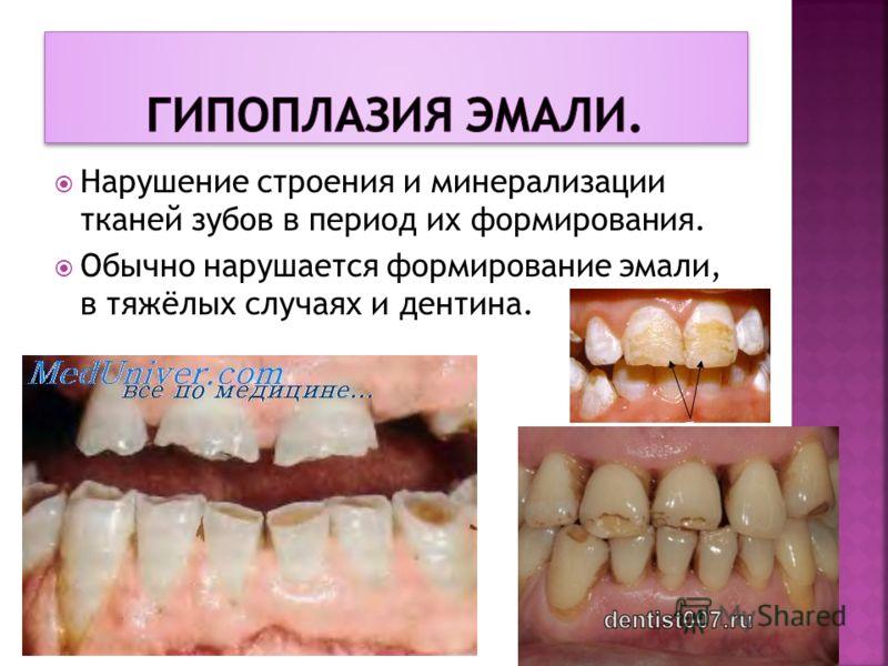 Нарушение строения и минерализации тканей зубов в период их формирования. Обычно нарушается формирование эмали, в тяжёлых случаях и дентина.