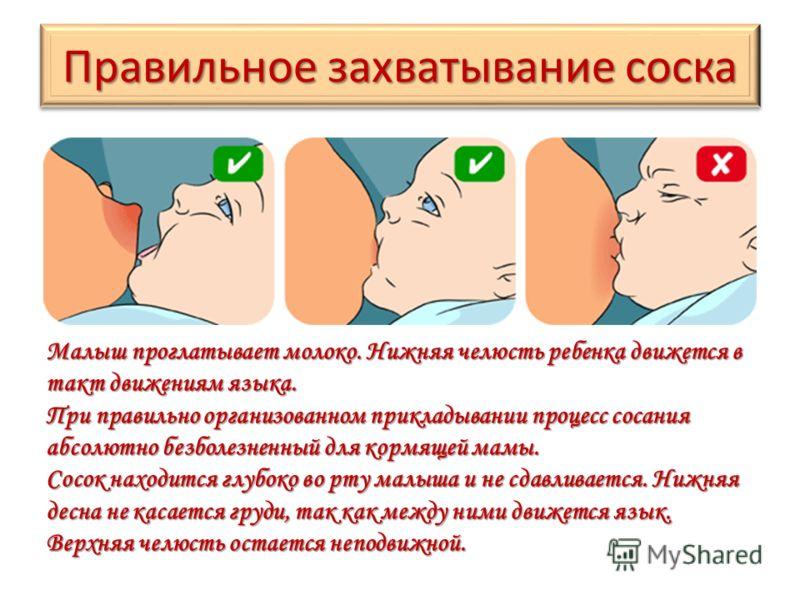 Правильное захватывание соска Малыш проглатывает молоко. Нижняя челюсть ребенка движется в такт движениям языка. При правильно организованном прикладывании процесс сосания абсолютно безболезненный для кормящей мамы. Сосок находится глубоко во рту мал