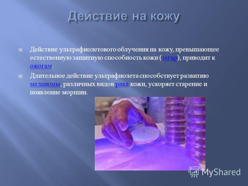Действие ультрафиолетового облучения на кожу, превышающее естественную защитную способность кожи ( загар ), приводит к ожогам. загар ожогам Длительное действие ультрафиолета способствует развитию меланомы, различных видов рака кожи, ускоряет старение