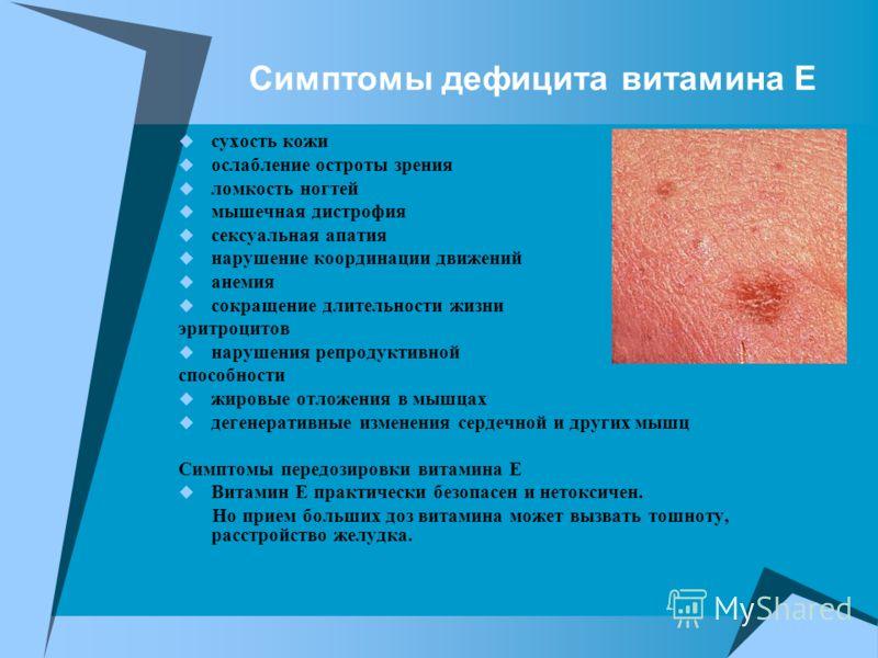 Симптомы дефицита витамина Е сухость кожи ослабление остроты зрения ломкость ногтей мышечная дистрофия сексуальная апатия нарушение координации движений анемия сокращение длительности жизни эритроцитов нарушения репродуктивной способности жировые отл