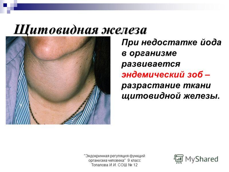 Эндокринная регуляция функций организма человека 9 класс Топалова И.И. СОШ 12 Щитовидная железа При недостатке йода в организме развивается эндемический зоб – разрастание ткани щитовидной железы.