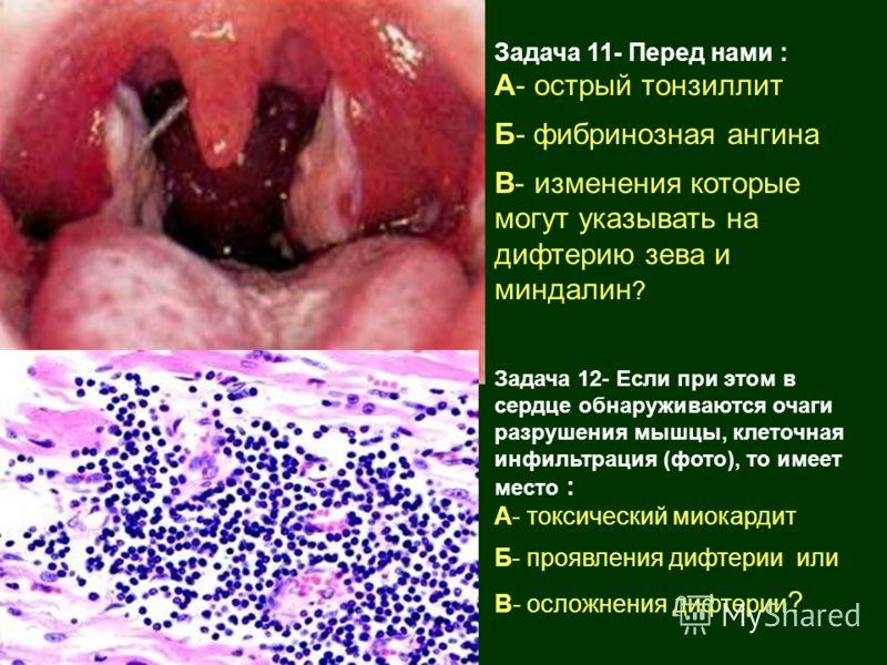Задача 11- Перед нами : А- острый тонзиллит Б- фибринозная ангина В- изменения которые могут указывать на дифтерию зева и миндалин ? Задача 12- Если при этом в сердце обнаруживаются очаги разрушения мышцы, клеточная инфильтрация (фото), то имеет мест