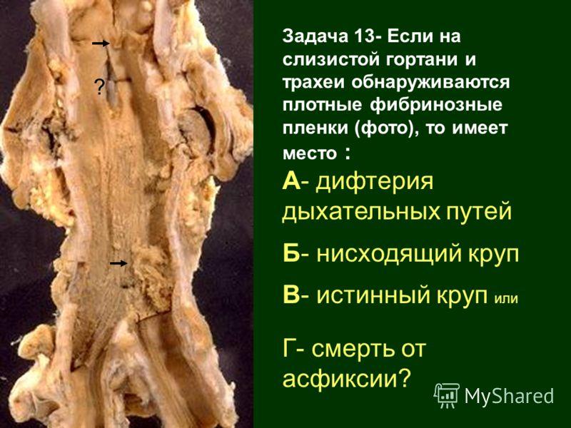 Задача 13- Если на слизистой гортани и трахеи обнаруживаются плотные фибринозные пленки (фото), то имеет место : А- дифтерия дыхательных путей Б- нисходящий круп В- истинный круп или Г- смерть от асфиксии? ?