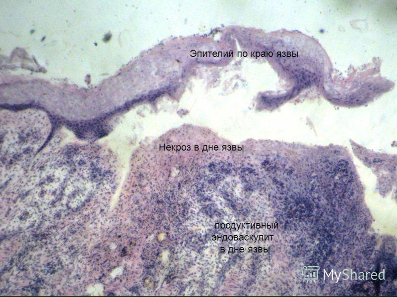 Эпителий по краю язвы Некроз в дне язвы продуктивный эндоваскулит в дне язвы