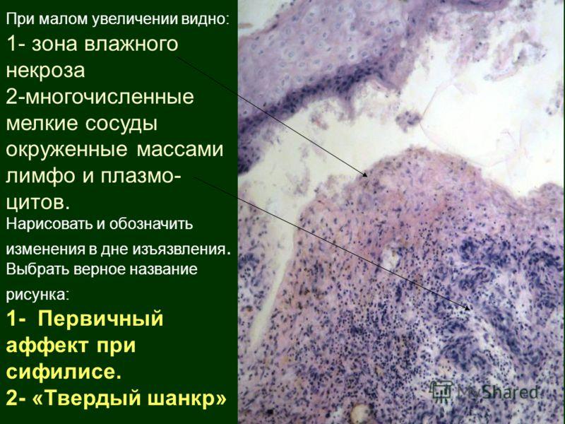 При малом увеличении видно: 1- зона влажного некроза 2-многочисленные мелкие сосуды окруженные массами лимфо и плазмо- цитов. Нарисовать и обозначить изменения в дне изъязвления. Выбрать верное название рисунка: 1- Первичный аффект при сифилисе. 2- «