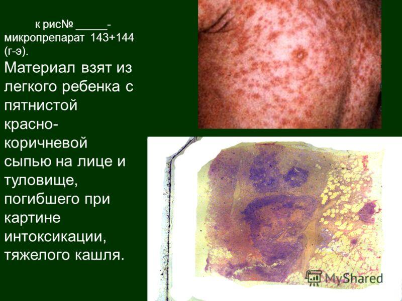 к рис _____- микропрепарат 143+144 (г-э). Материал взят из легкого ребенка с пятнистой красно- коричневой сыпью на лице и туловище, погибшего при картине интоксикации, тяжелого кашля.