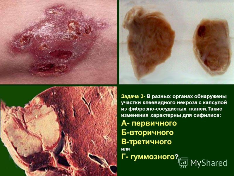 Задача 3- В разных органах обнаружены участки клеевидного некроза с капсулой из фиброзно-сосудистых тканей.Такие изменения характерны для сифилиса: А- первичного Б-вторичного В-третичного или Г- гуммозного ?