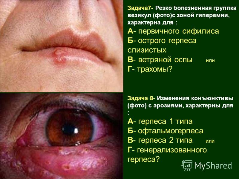 Задача7- Резко болезненная группка везикул (фото)с зоной гиперемии, характерна для : А- первичного сифилиса Б- острого герпеса слизистых В- ветряной оспы или Г- трахомы? Задача 8- Изменения конъюнктивы (фото) с эрозиями, характерны для : А- герпеса 1