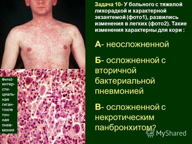 Задача 10- У больного с тяжелой лихорадкой и характерной экзантемой (фото1), развились изменения в легких (фото2). Такие изменения характерны для кори : А- неосложненной Б- осложненной с вторичной бактериальной пневмонией В- осложненной с некротическ